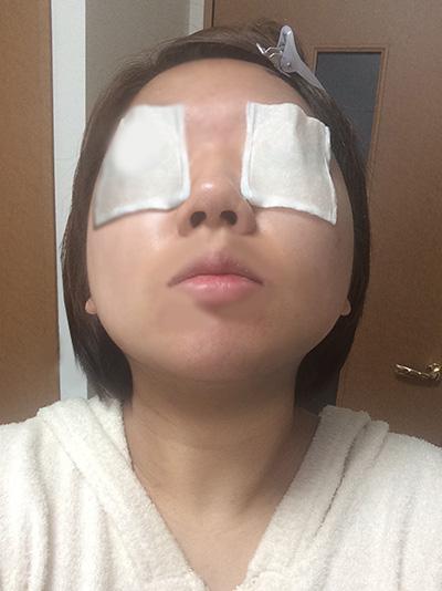 対処 法 時 の 目 が た 腫れ