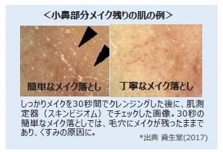 小鼻部分メイク残りの肌の例