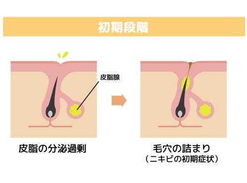 ■肌荒れやニキビができる原因