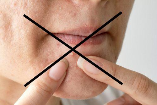 口 の 横 に 出来 物