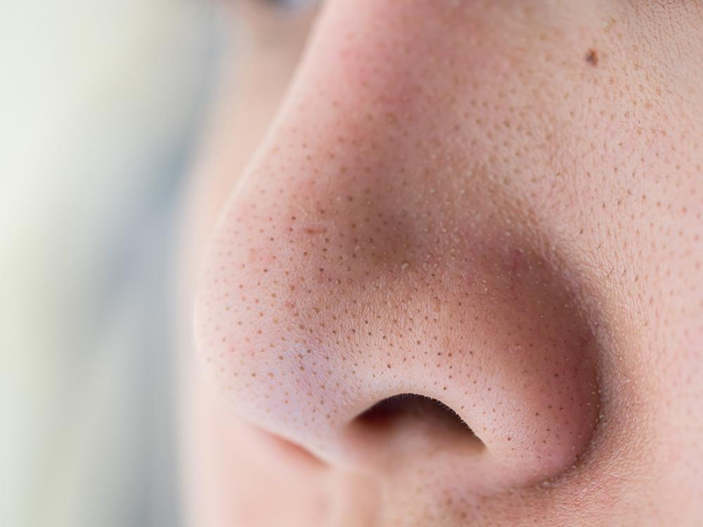 黒ずみ毛穴を治すには?皮膚科医に聞いた正しい洗顔やスキンケアまとめ