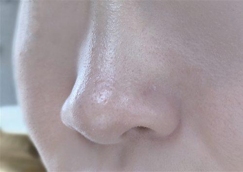 ■肌がテカる原因・・・混合肌やオイリー肌対策