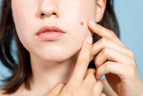 ■お肌の困った!を皮膚科医が解決♡ニキビを早く治すには?