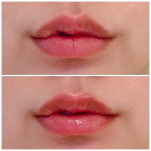 保湿力◎ケイトの唇の縦ジワが消えた!